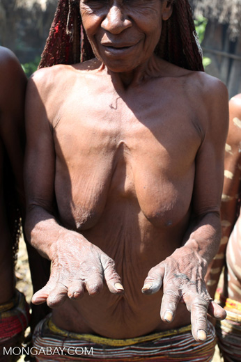 Dani woman displaying her mostly fingerless hands, each time someone in her family dies, she cuts off a finger using a stone knife